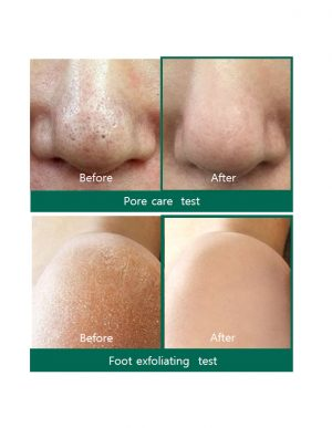 Some By Mi AHA BHA PHA Miracle Acne Cleansing Bar results